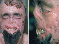 The cases of vampirism or disease porphyria