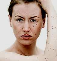 Neurofibromatose: seine Form und Symptome