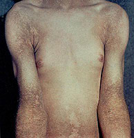 What is ichthyosis vulgaris