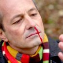 razões hemorragias nasais