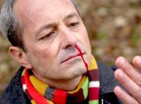 razones sangrado por la nariz