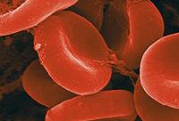 preventie van bloedarmoede