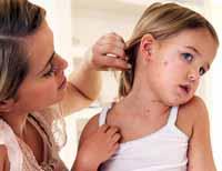 Masern: Symptome, Diagnose, Behandlung und die Bedeutung der Prävention