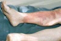 Le traitement de l'érysipèle