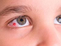 ansträngda ögon stress