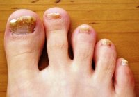 Nail fungus on his feet: all about the disease