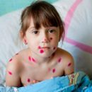 how and what to smear chickenpox means to combat a rash