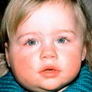 sygdomme i spytkirtlerne hos børn fra fåresyge til spyt sten sygdom