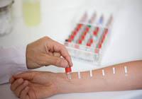 Транскрипция анализи на алергени