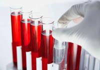 Verklaring van de analyse: ziekte, seksueel overdraagbare infecties