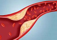 elevated cholesterol