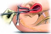 A biópsia do colo do útero