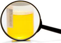 општа анализа урина и индикатори декодирање