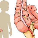 Ursachen der Peritonitis bei Kindern