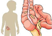 causas de peritonitis en niños