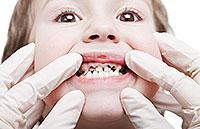 Typer af caries: overfladiske og dybe caries hos børn