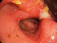 The aggravation of gastric ulcers: causes, symptoms and actions