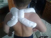 Collarbone fracture in children