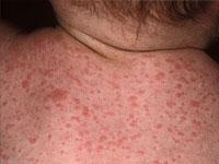 O tratamento de infecções estafilocócicas em crianças