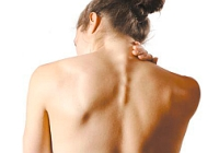 symptoms and treatment of degenerative disc disease of the cervical spine