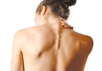 Симптоми и лечење дегенеративног обољења диска на вратне кичме