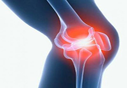 Baker's cyst of the knee joint