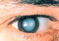 cataract symptoms and the nature of the disease