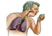 bronquite crónica