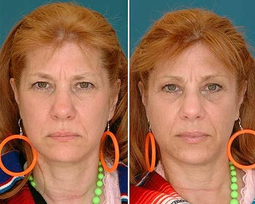 Lifting die Gesichtscreme von 45 Jahren
