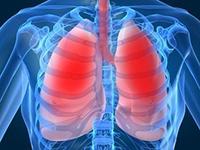 bronkitis symptomer