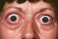 enfermedad de Basedow