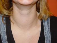Hypogonadism women