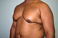 Gynecomastia: operasjonen er ikke alltid nødvendig!