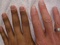 diagnóstico da doença de Addison e tratamento