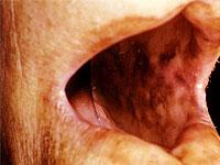 Objawy choroby Addisona i ich manifestacje