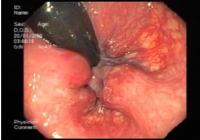 Хемороида: узроци и Симптоми