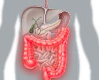 Crohn's Disease: Symptoms and Treatment