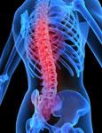¿Qué tan peligroso artrosis de la columna vertebral?