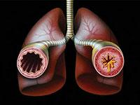 Rozpoznanie astmy w wyniku infekcji i alergii
