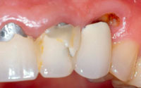 The most common mistakes in the treatment of dental caries