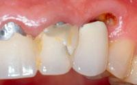 Os erros mais comuns no tratamento de cáries dentárias