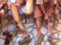 Ефекти акутне инфекције полио