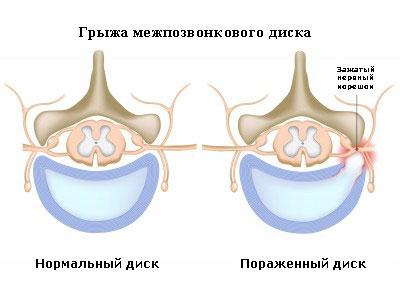 przepukliny międzykręgowej