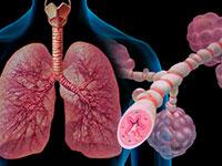 Astmę dziecięcą: objawy, leczenie