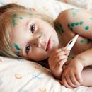 child sick with chickenpox what to do