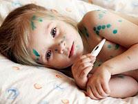 barnet syk med vannkopper hva de skal gjøre
