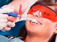 Andere Verfahren zur Entfernung von Zahnstein