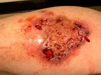 Huid difterie zeer gevaarlijk