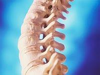 Przyczyny choroby zwyrodnieniowej stawów lub chorobą zwyrodnieniową stawów kręgosłupa