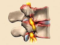 Hva er slitasjegikt i cervical ryggraden og dens konsekvenser